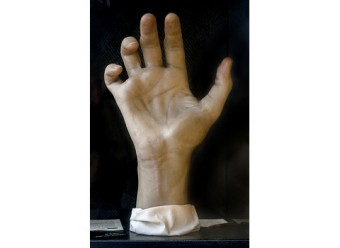 In addition to her illustrations, Maria Wishart also made several hundred wax models of pathological conditions and surgical techniques. The curled fingers on this hand, called main-en-griffe, are due to a nerve lesion. Model: Maria Torrence Wishart