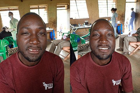 A Ugandan man, before and after restorative dental treatment.