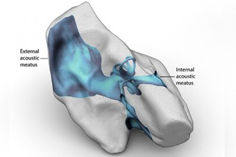A 3D model of a body part.