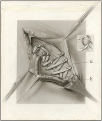 "Carbon-dust image of a ""living sutures"" ventral hernia repair, drawn in 1924. The then-new technique involved using strips of tissue instead of thread. Illustration: Maria Wishart"