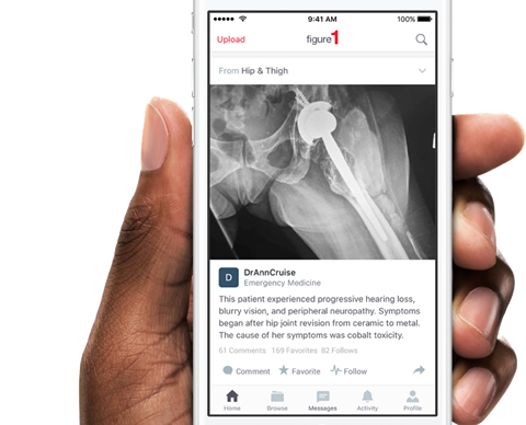 Photo of hand holding demo of Figure 1 application for doctors.