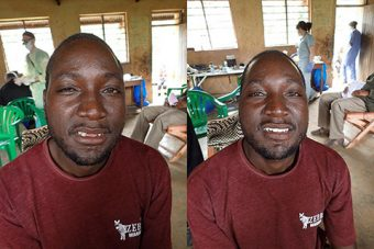 A Ugandan man, before and after restorative dental treatment.